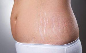درمان ترک های پوستی با میکرونیدلینگ