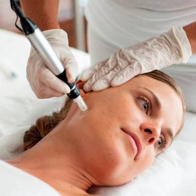 تأثیر میکرونیدلینگ در جوانسازی پوست