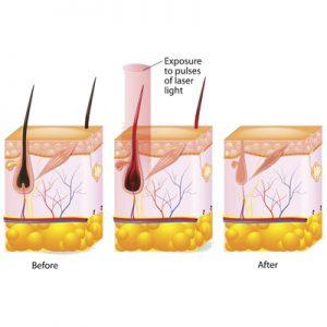 چگونگی عملکرد لیزر موهای زائد
